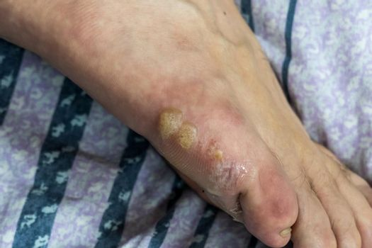 Multiple blisters on foot