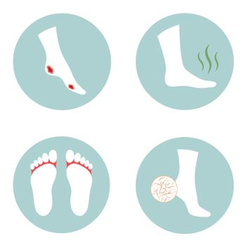 dibetic, crecked, fungus and stinky foot problems,