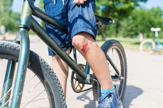 Boy wearing shorts on bike with bloodstained scratch on knee