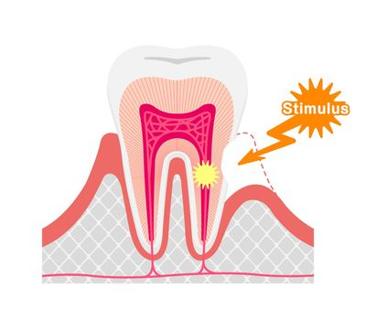 Cause and mechanism of Sensitive teeth vector illustration