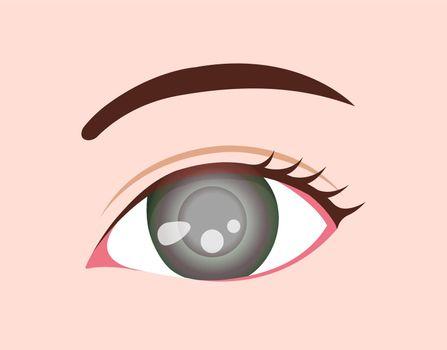 Eye disease vector illustration / Glaucoma
