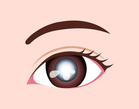 Eye disease vector illustration / Cataract