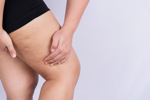 Female holding and pushing the skin of the legs cellulite or orange peel. Treatment and disposal of excess weight, the deposition of subcutaneous fat tissue