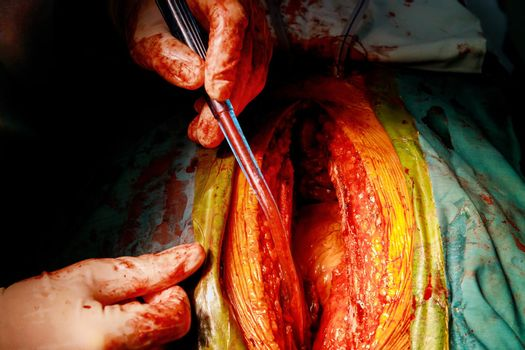Process surgery operation of trauma using medical equipment in operating room