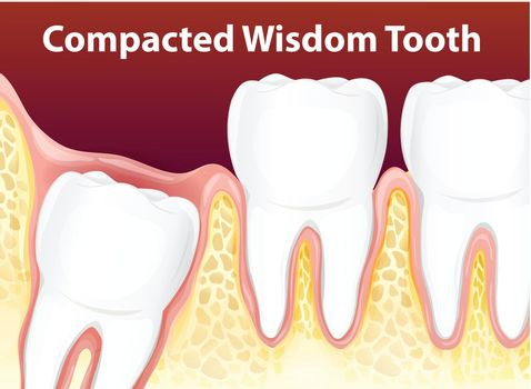 Compacted Wisdom Diagram Tooth