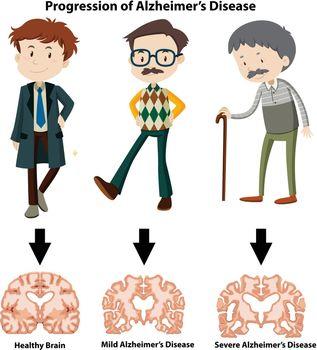 A Progression of Alzheimer's Disease