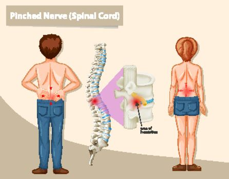 Diagram showing pinched nerve in human