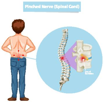 Diagram showing man and pinched nerve