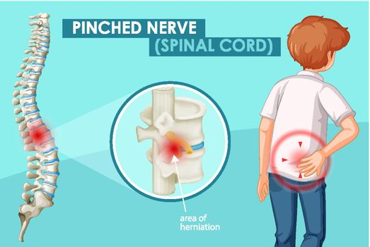 Diagram showing pinched nerve