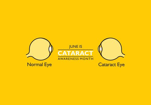 Vector illustration of Cataract Awareness Month observed in June.