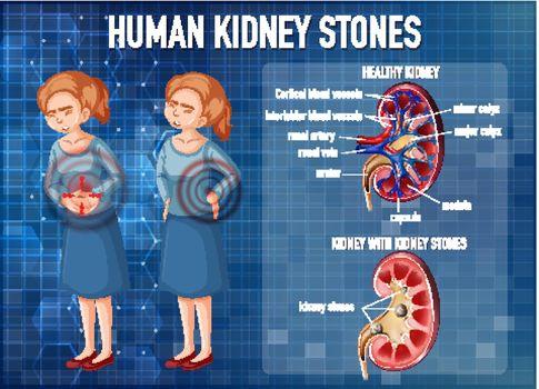 Informative illustration of kidney stones