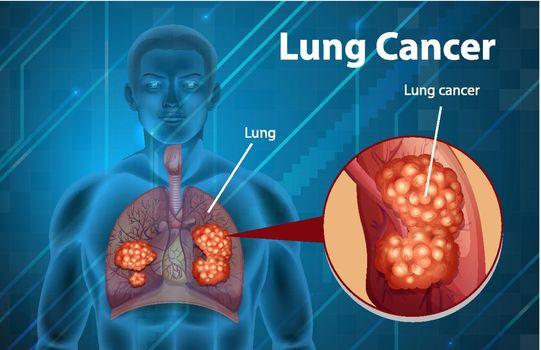 Informative illustration of lung cancer