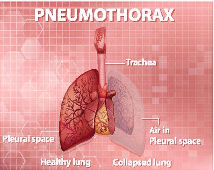 Informative illustration of Pneumothorax