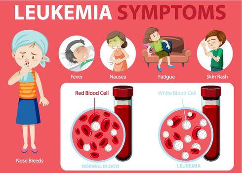 Leukemia symptoms cartoon style infographic illustration