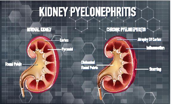 Informative illustration of Pyelonephritis