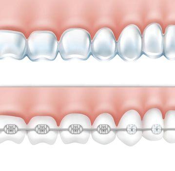 human teeth with braces set