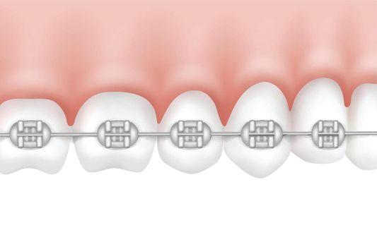 Teeth with metal braces