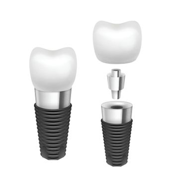 Vector tooth implant