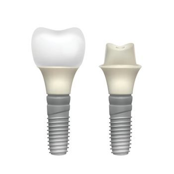 Plastic assembled tooth implant