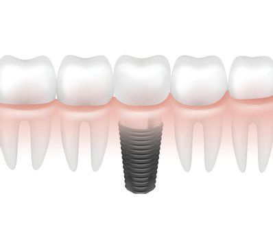 Metal tooth implant