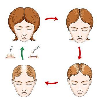 Female hair loss and transplantation icons