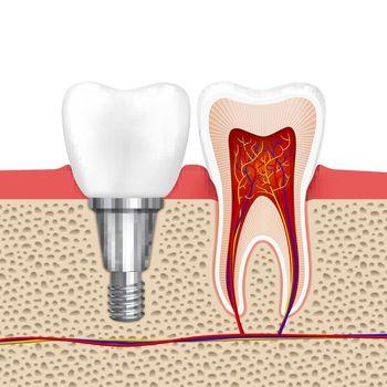 Healthy teeth and dental implant