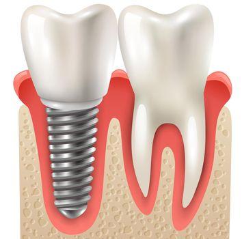 Dental Implant Tooth Set Closeup Model