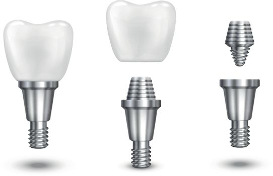 Tooth implant vector illustration