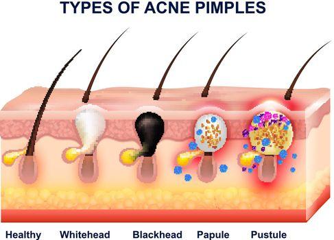 Skin Acne Anatomy Composition