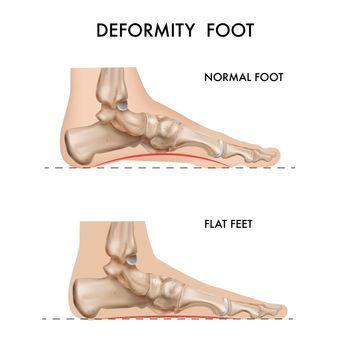 Foot Bones Deformation Composition