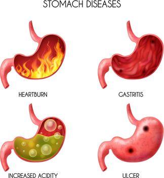 Realistic Human Internal Organ Stomach Icon Set